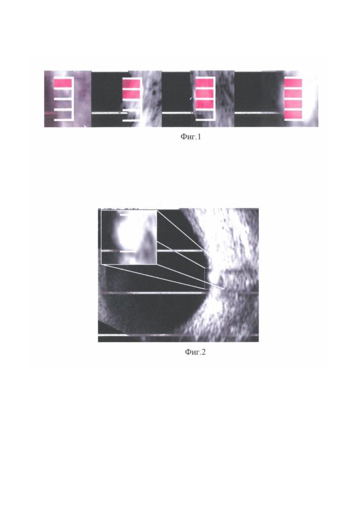 Шкала для определения размера и положения друз диска зрительного нерва