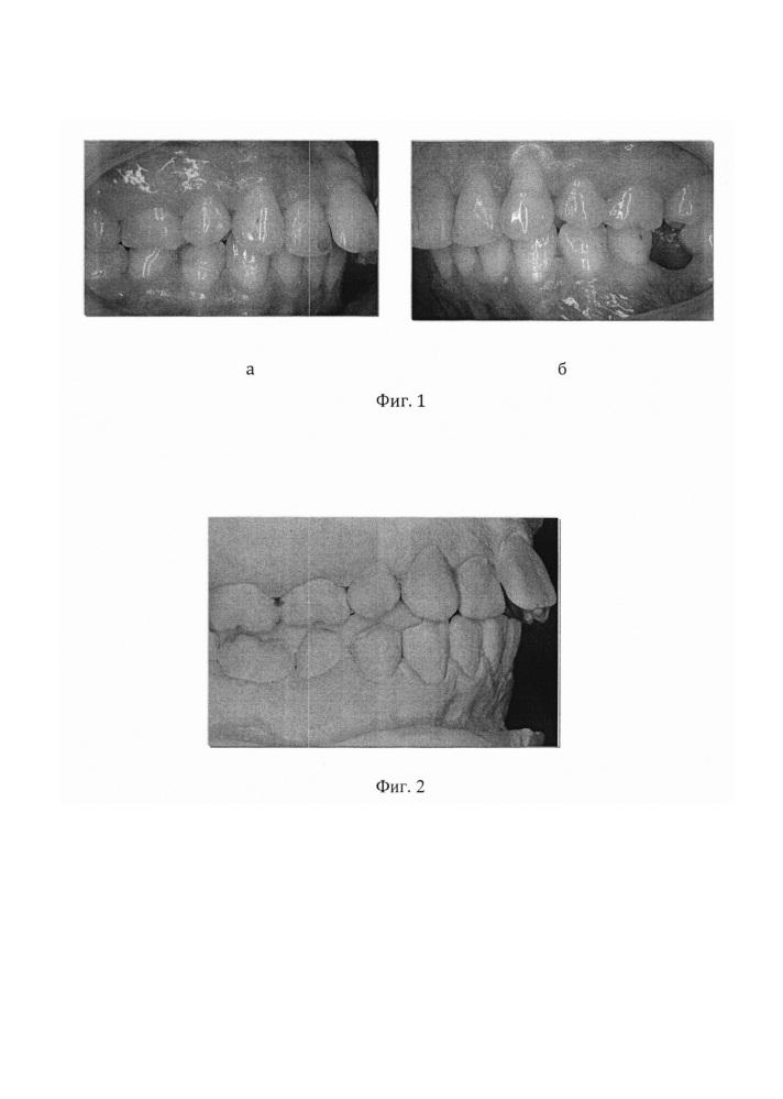 Способ лечения зубочелюстных аномалий у пациентов с вынужденным положением нижней челюсти с помощью эластопозиционеров
