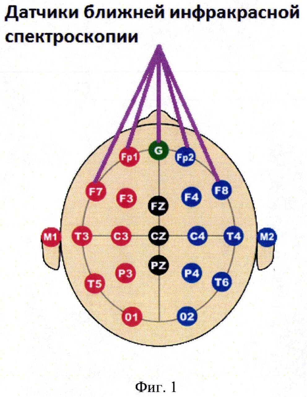 Способ гибридной регистрации метаболической активности головного мозга человека
