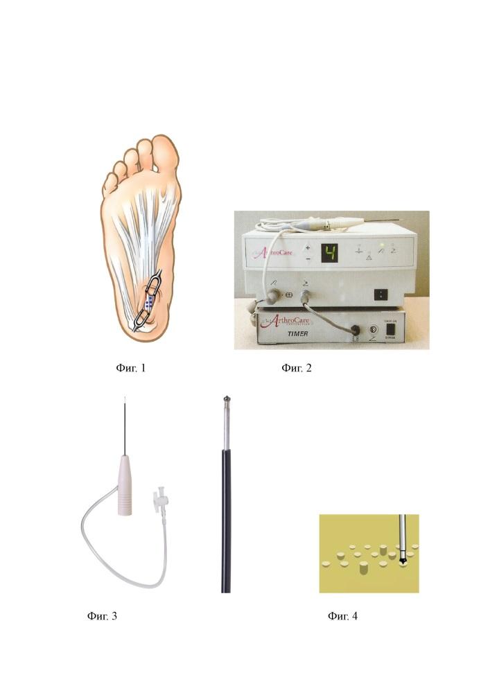 Хирургический способ лечения проксимального подошвенного фасциоза