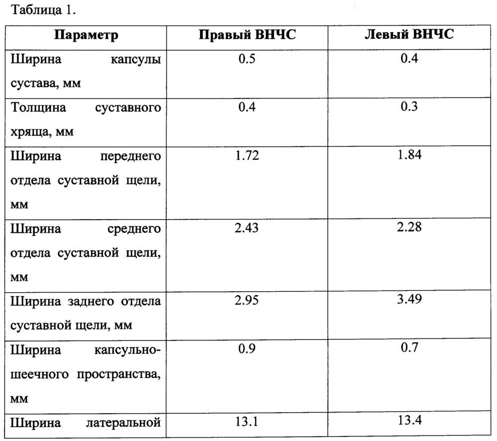 Способ оценки морфофункционального состояния височно-нижнечелюстного сустава
