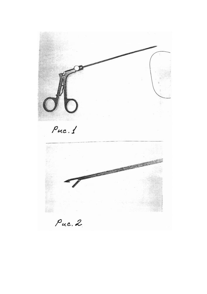 Способ фиксации сетчатого трансплантата при лапароскопической герниопластике паховой грыжи