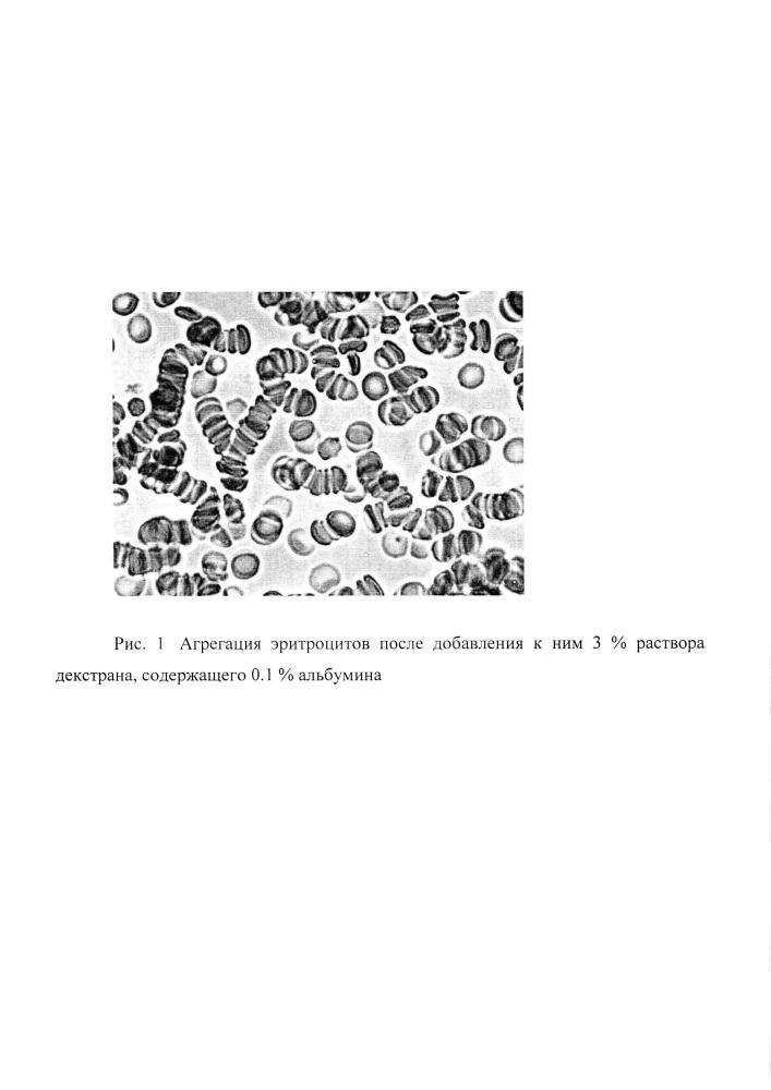 Способ морфологической оценки агрегации эритроцитов, индуцированной высокомолекулярными полимерами