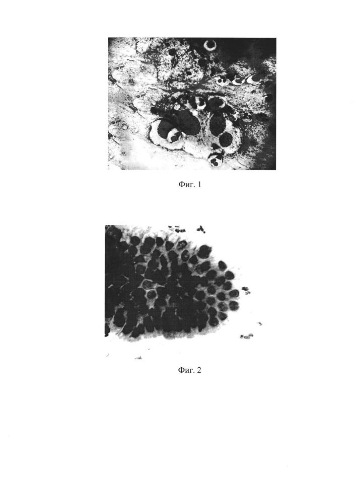 Способ диагностики цервикальной интраэпителиальной неоплазии