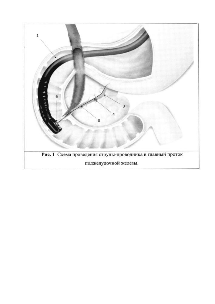 Способ эндоскопического лечения вирсунголитиаза