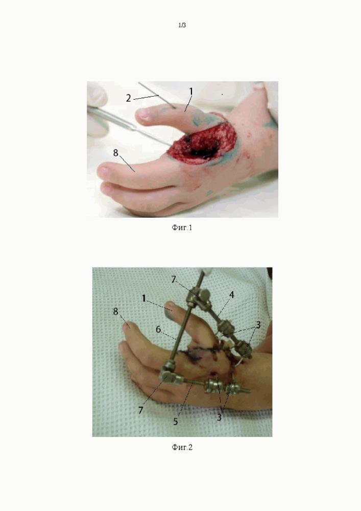 Способ фиксации ii пальцевого луча кисти при его поллицизации при отсутствии i пальцевого луча кисти