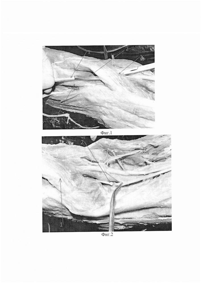 Способ транспозиции общего малоберцового нерва в межмышечное пространство