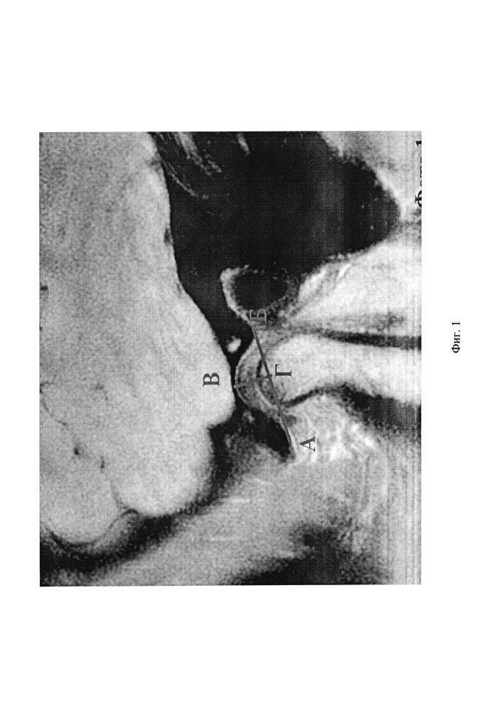 Способ определения положения суставного диска височно-нижнечелюстного сустава по мр изображению