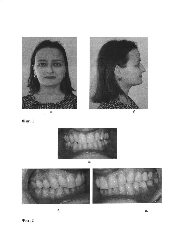 Способ дифференциальной диагностики нарушений движений нижней челюсти миогенной и артрогенной этиологии