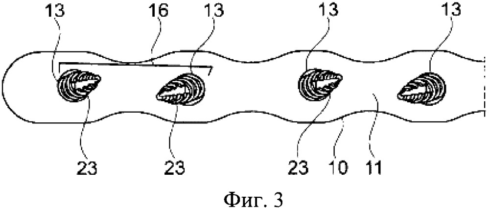 Система фиксации ребра