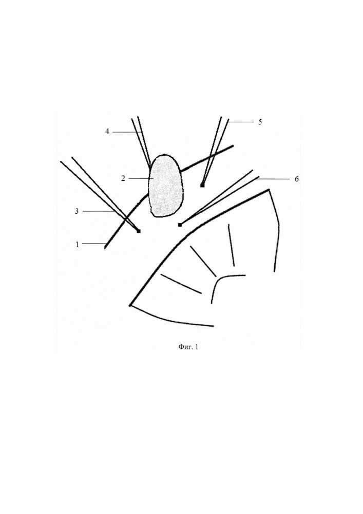 Способ асептической органосберегающей резекции полых органов пищеварительного тракта