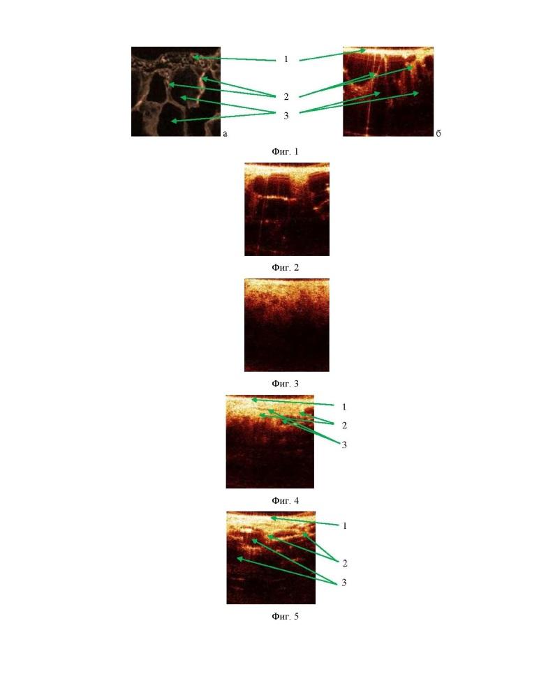 Способ выбора тактики ведения пациента с заболеваниями висцеральной плевры и подлежащей ткани легкого при патологическом скоплении жидкости и/или воздуха в полости плевры
