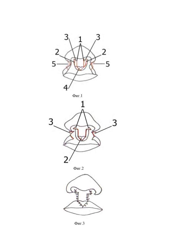 Способ одномоментной двусторонней хейлоринопластики при асимметричной двусторонней расщелине верхней губы