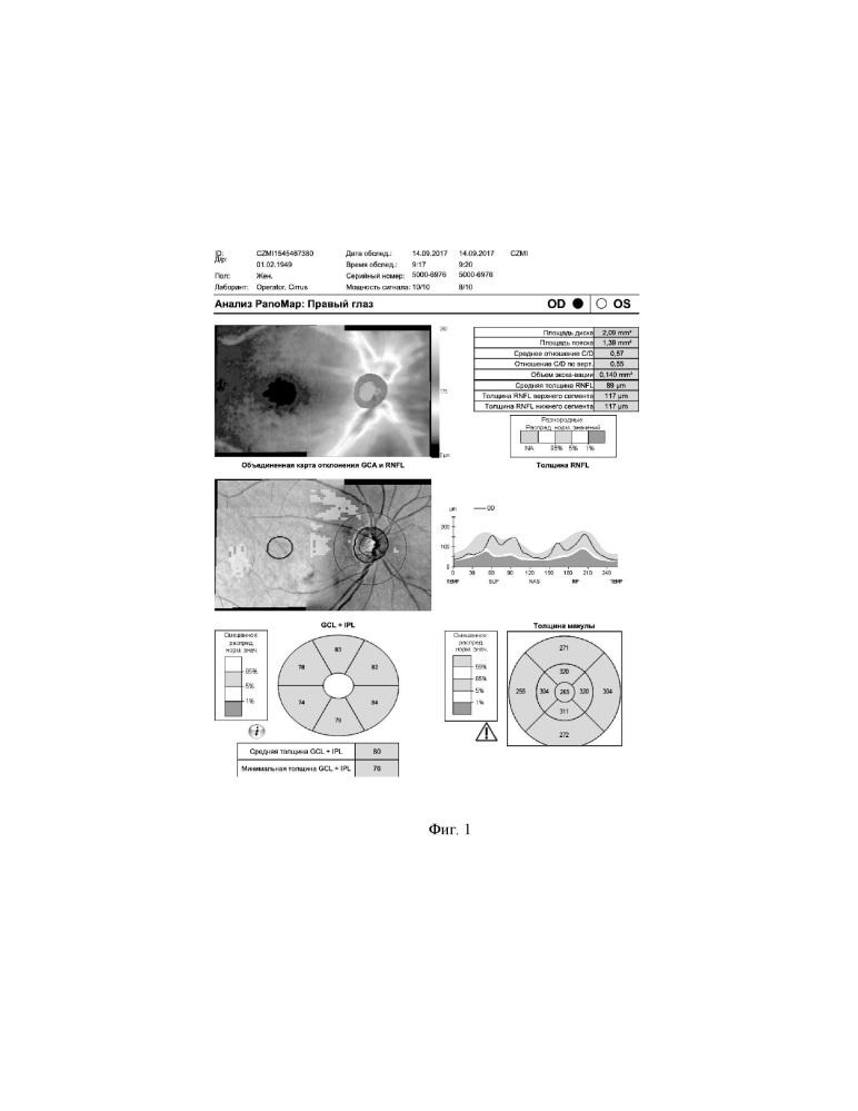 Способ прогнозирования риска развития псевдоэксфолиативной глаукомы