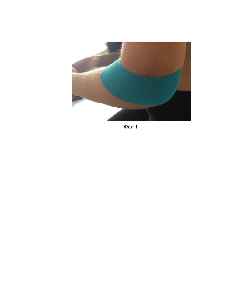 Способ лечения авульсионных переломов надмыщелков плечевой кости со смещением костных отломков