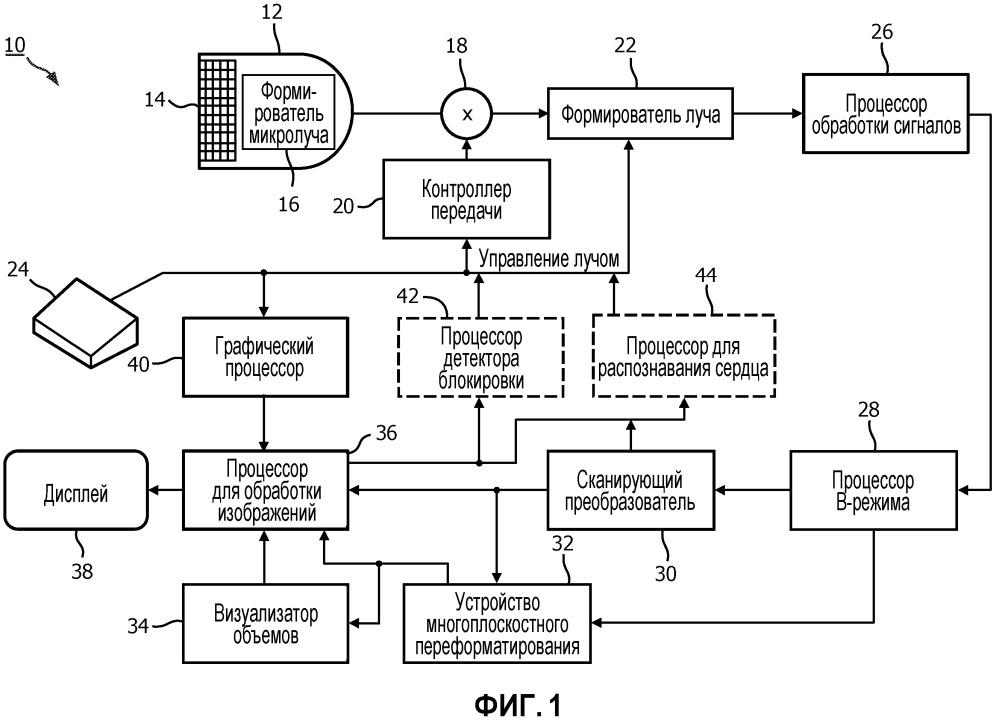 Ультразвуковое устройство для терапии с применением сонотромболизиса