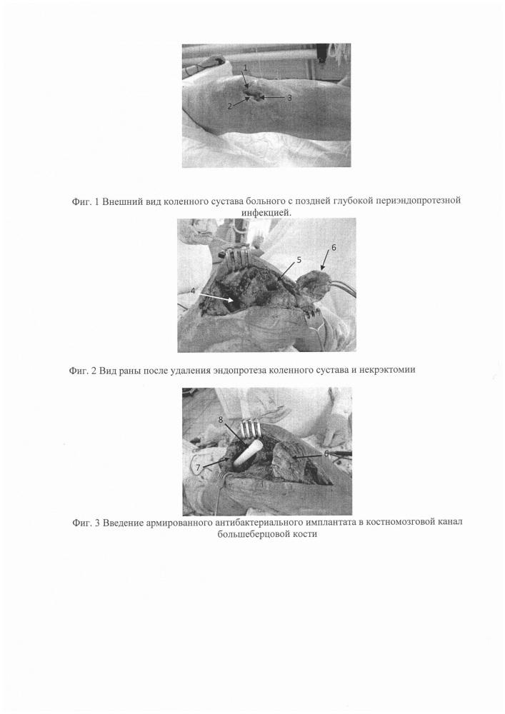 Способ артродеза коленного сустава при глубокой периэндопротезной инфекции с применением интрамедуллярного армированного антибактериального цементного имплантата