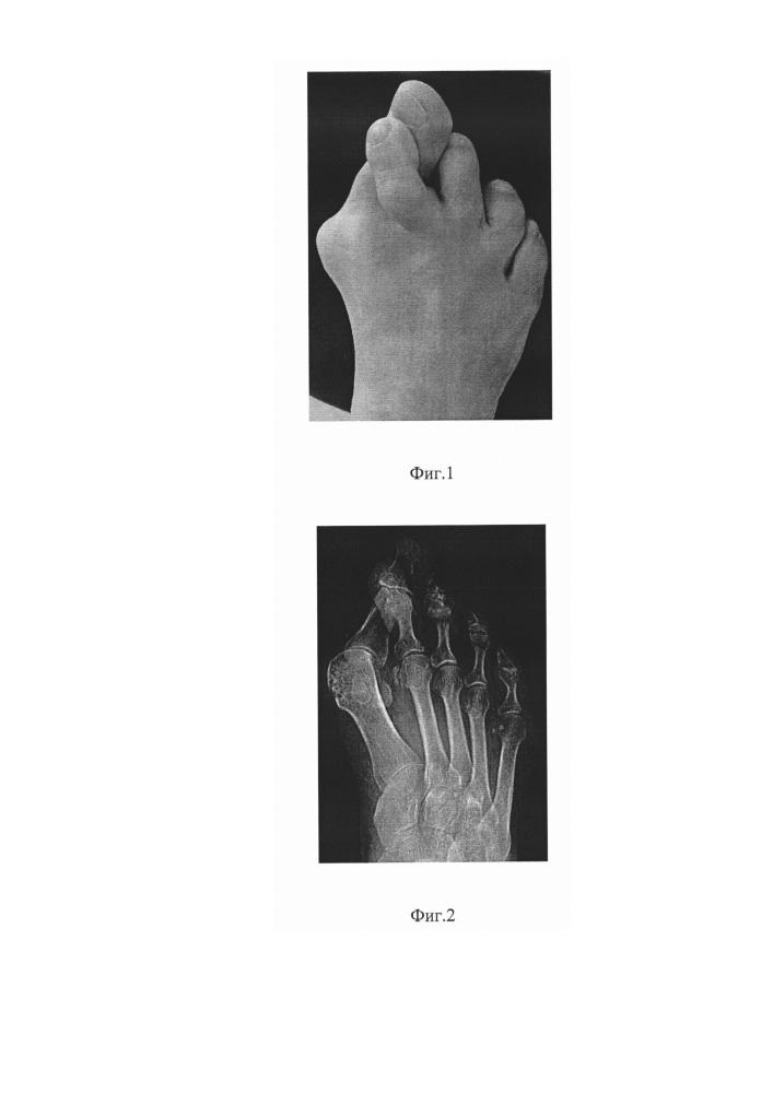 Способ восстановления разрыва 3-4 типа подошвенной пластинки ii-iv плюснефаланговых суставов стопы