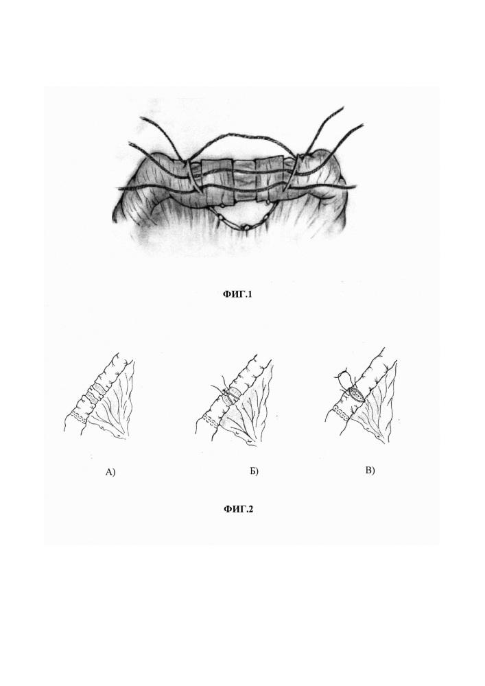 Способ формирования антирефлюксного клапана на интерпонированном сегменте тощей кишки после гастрэктомии