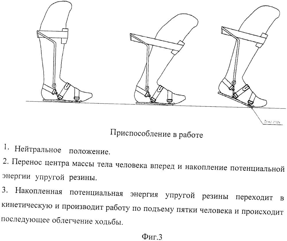Приспособление для облегчения ходьбы с применением каркаса из высокоуглеродистого пластика
