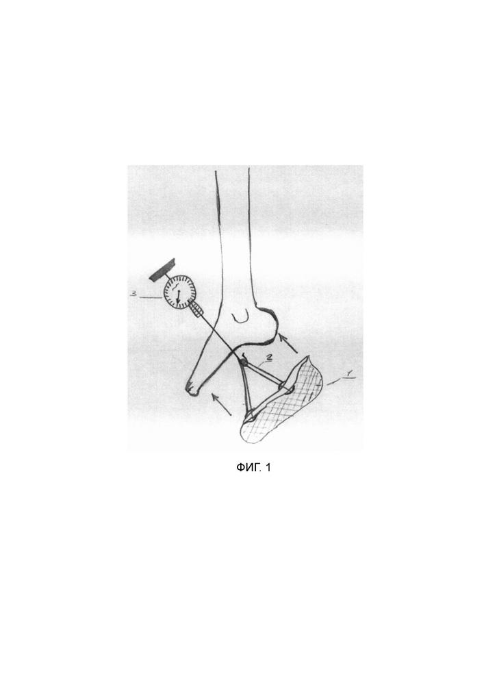 Способ определения тяжести эквинусной деформации стоп у детей с детским церебральным параличом