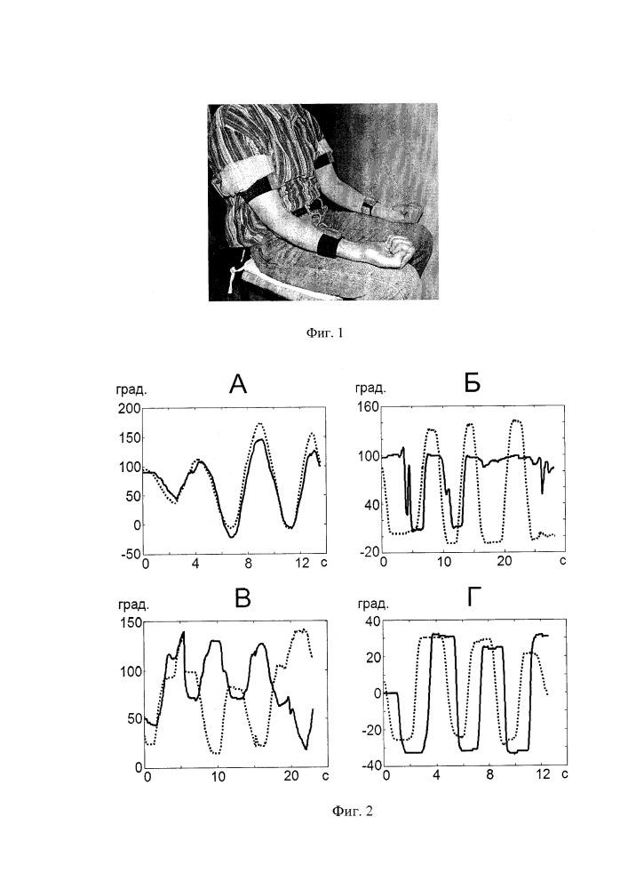 Способ объективной оценки проприоцептивной чувствительности в отдельных суставах конечностей у человека