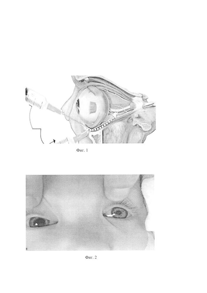 Способ анестезиологического обеспечения при селективной доставке химиопрепарата к сетчатке глаза при лечении интраокулярной ретинобластомы у детей