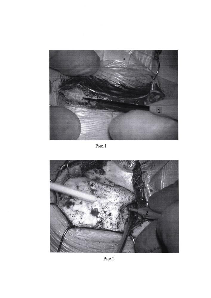 Способ выполнения модифицированной супраорбитальной краниотомии при лечении гигантских глиом у детей