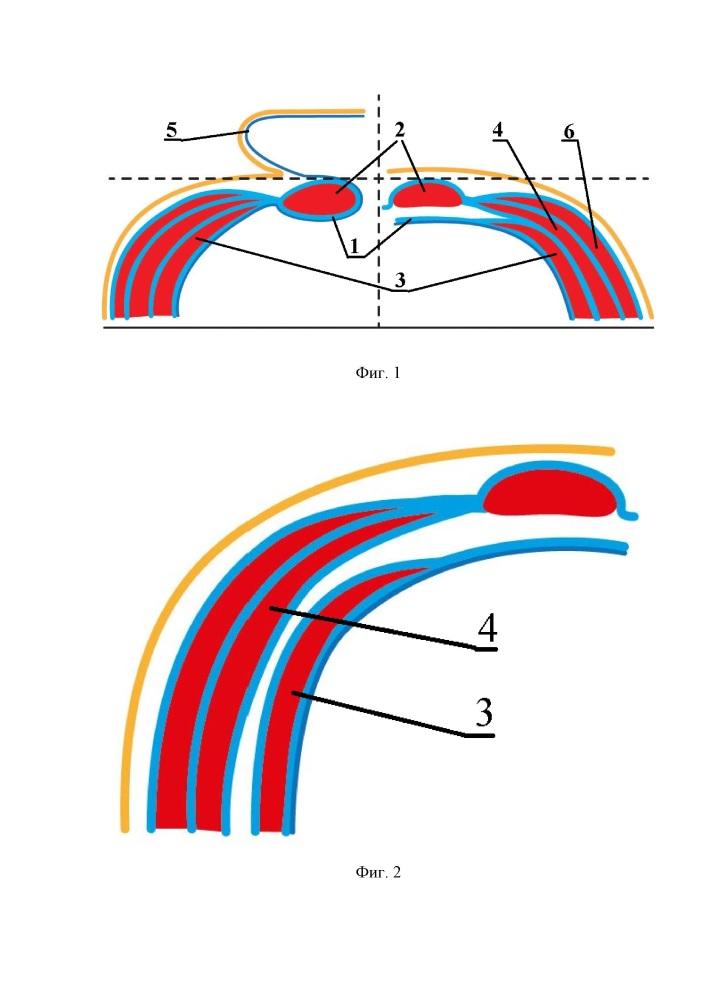 Способ хирургического лечения больных с большими и гигантскими вентральными грыжами