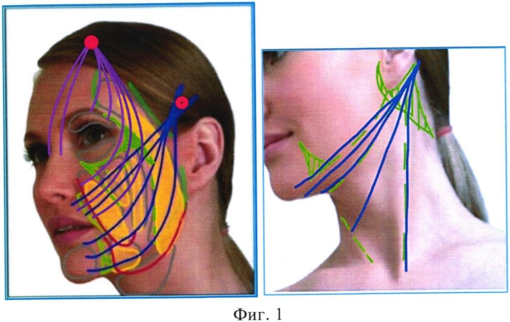 Малоинвазивный одномоментный способ фиксации мягких тканей лица и шеи