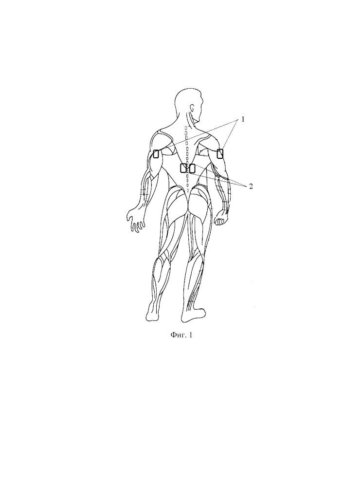 Способ формирования опорной функции верхних конечностей у пациентов с патологией позвоночника и спинного мозга на шейном уровне