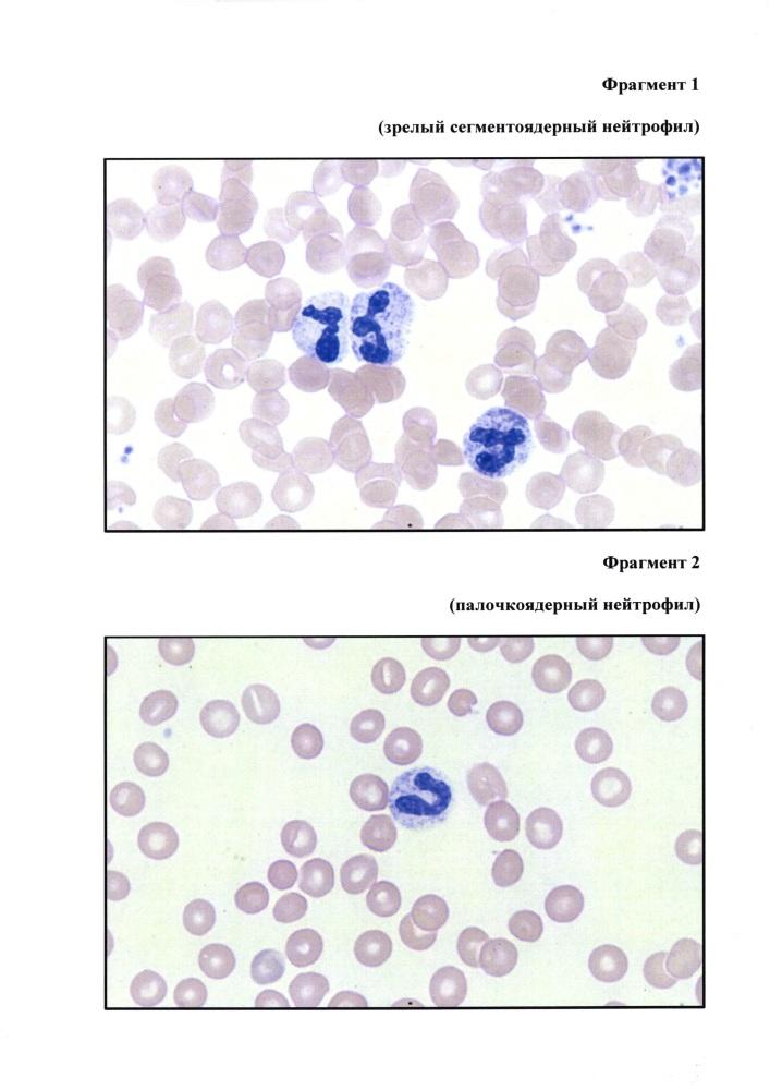 Способ обнаружения внеклеточной днк в цельной периферической крови