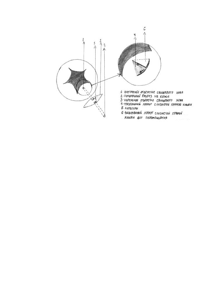 Способ лечения транссфинктерных свищей прямой кишки