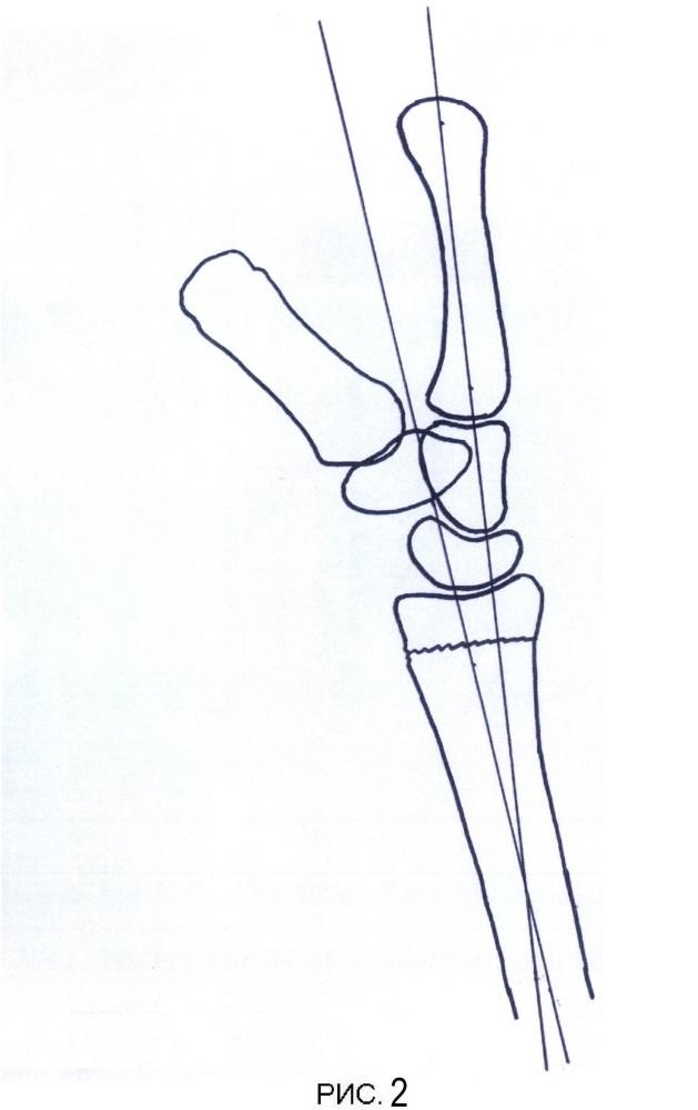 Способ лечения переломов дистального эпиметафиза лучевой кости и устройство для его осуществления