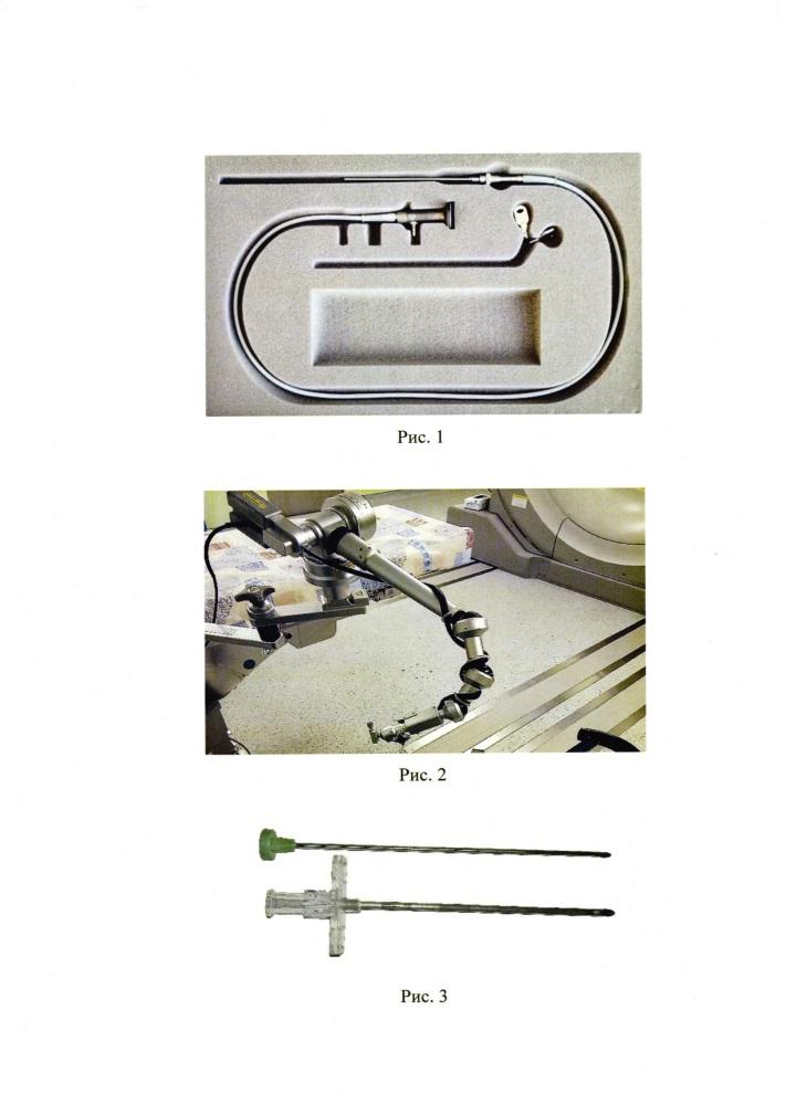 Эндоскопический способ установки люмбального катетера в субарахноидальное пространство