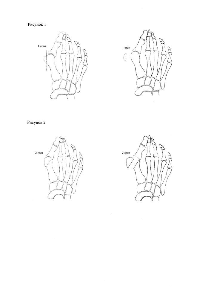 Способ оперативного лечения выраженного вальгусного отклонения первого пальца стопы