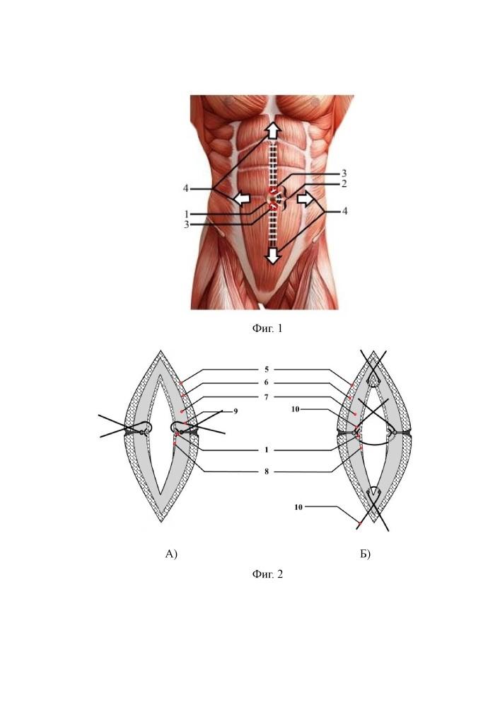 Способ профилактики послеоперационных вентральных грыж после срединной лапаротомии