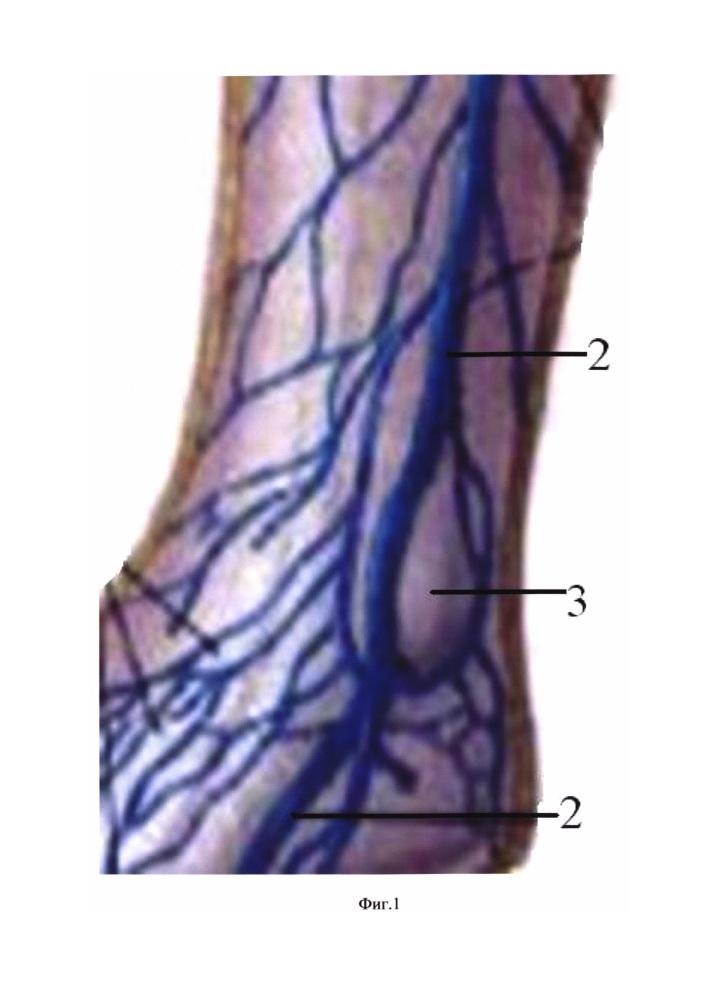 Способ предупреждения повреждения большой подкожной вены при травматологических операциях на нижней трети голени