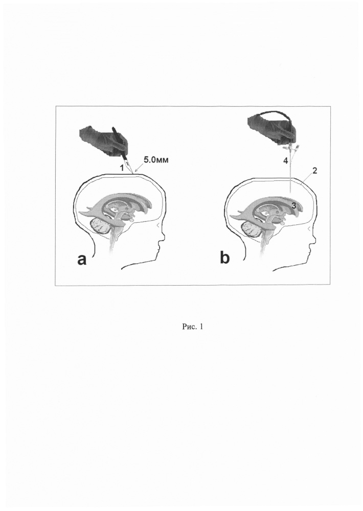 Способ выполнения эндоскопической вентрикулоцистерностомии дна третьего желудочка у детей с гидроцефалией
