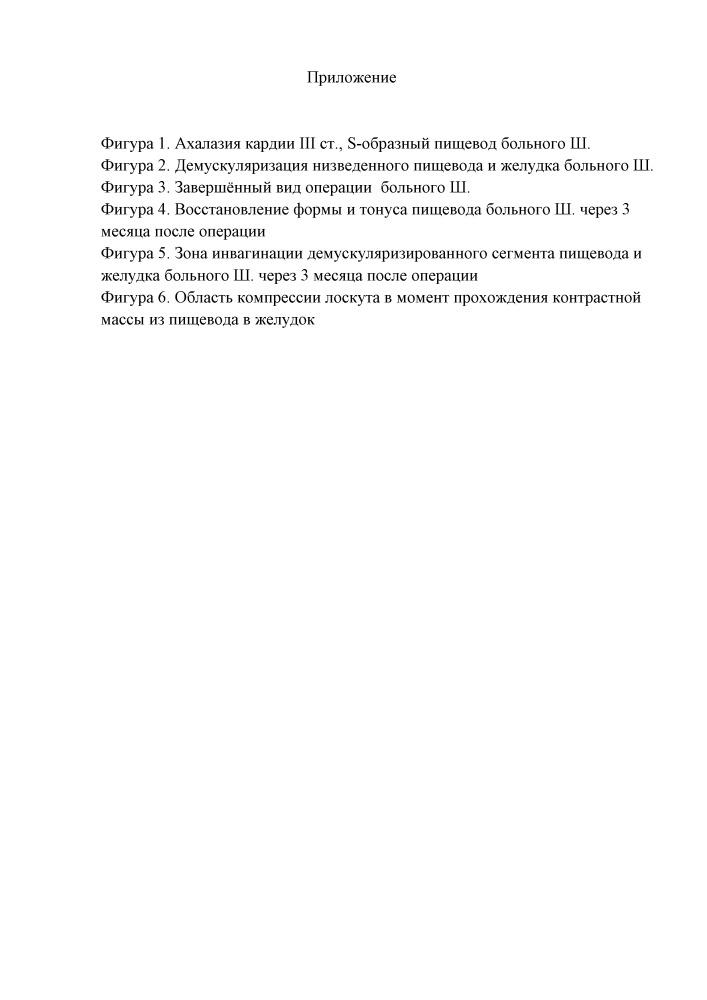 Способ хирургического лечения ахалазии кардии iii-iv стадии, осложненной s-, l-образной деформацией пищевода