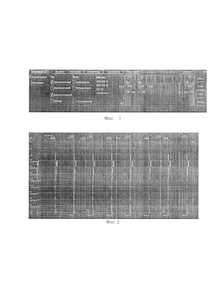 Способ одномоментной двухканальной стимуляции при криобаллонной аблации лёгочных вен с применением системы астрокард - кардиоэфи ii