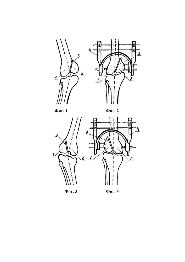 Способ коррекции вальгусно-варусных деформаций коленного сустава