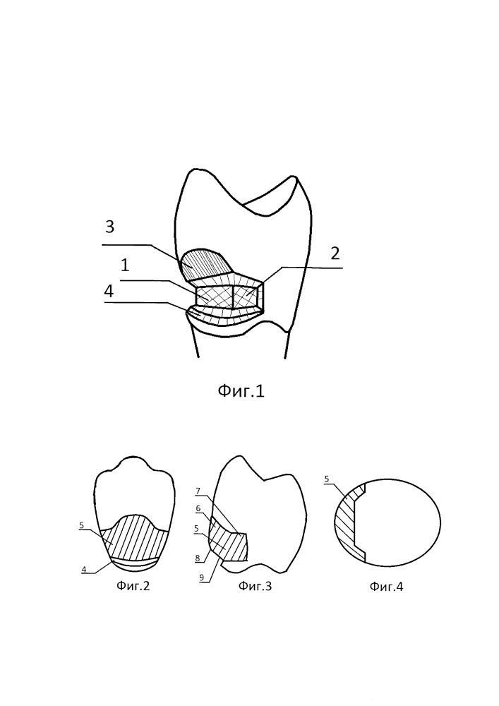 Способ лечения клиновидного дефекта зуба и устройство для его осуществления