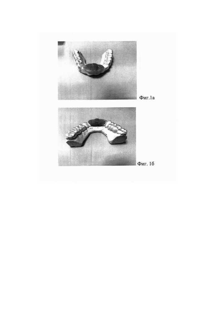 Способ ортопедического лечения пациентов с дистальной окклюзией