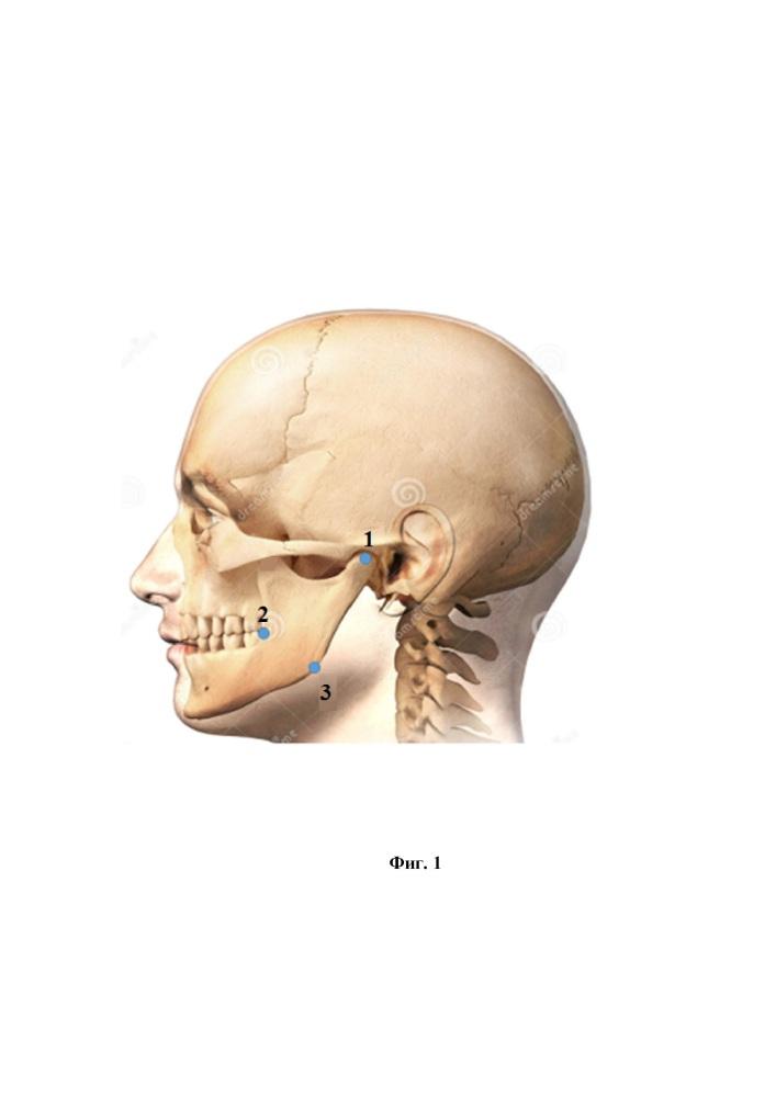 Способ определения расположения канала нижней челюсти для пункции и канюляции нижнего альвеолярного нерва