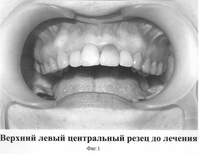Стоматологии во Владимире