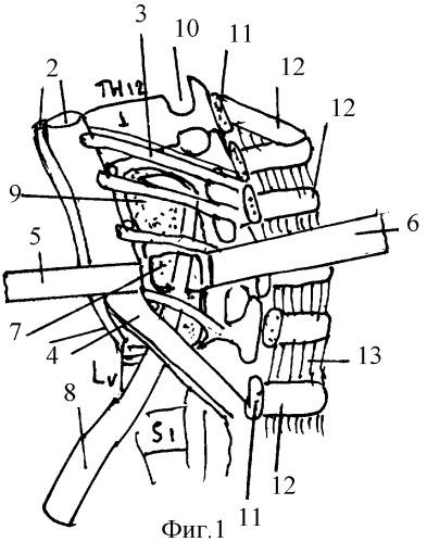 Кифотическая деформация шейного отдела позвоночника что это такое ...