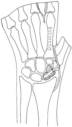 Лечение ложных суставов ладьевидной кости аппарат бриз для лечения суставов купить