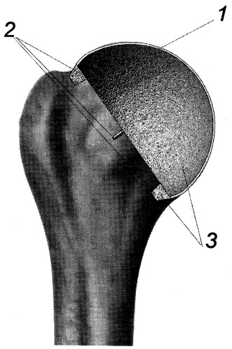 Эндопротез для замещения хрящевой поверхности головки плечевой кости