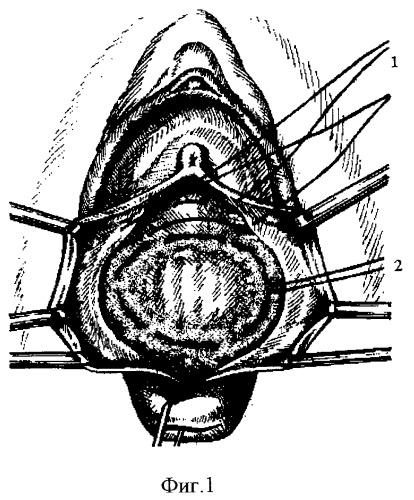 vipadenie-peredney-stenki-vlagalisha-foto